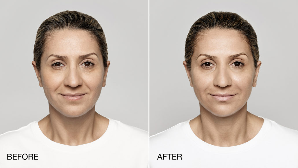 Restylane – Product Information